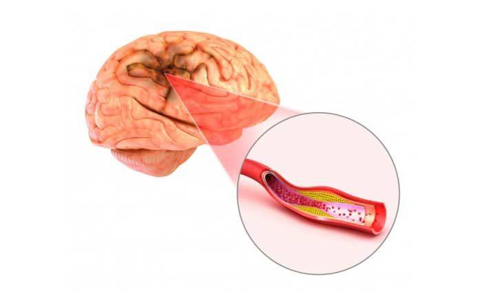 anevrism cerebral