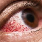 Uveita: simptome, tipuri, diagnostic, cauze și tratament