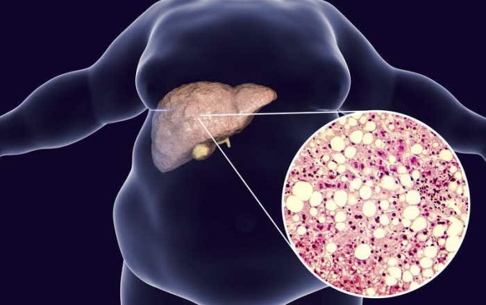 simptome ale detoxifierii ficatului